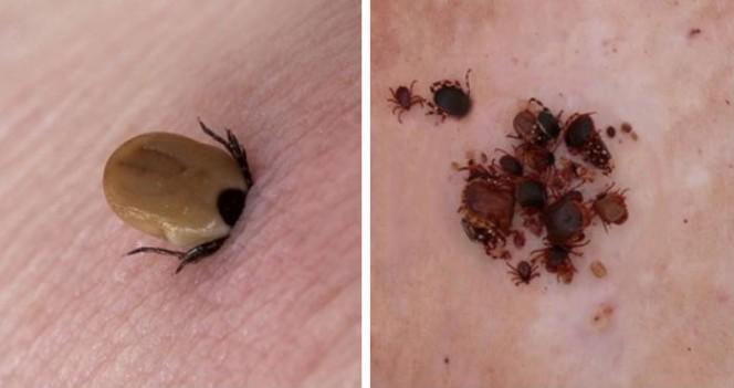 tick disease