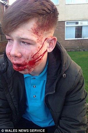 teen bullied