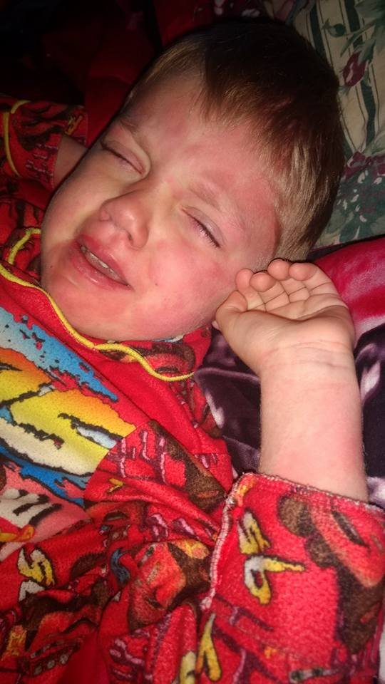 son with measles