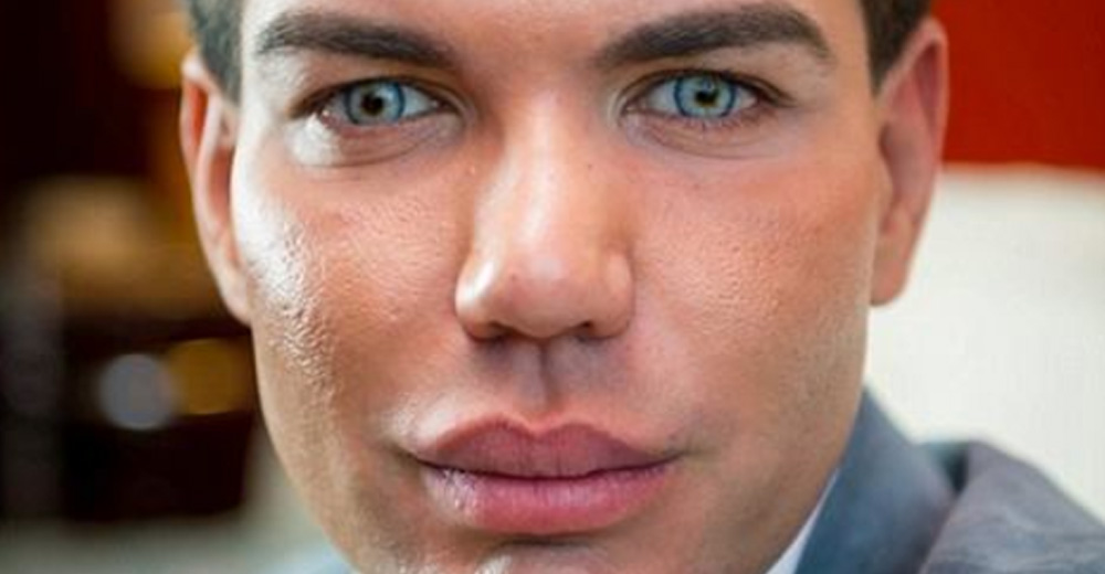 Man Had 40 Surgeries To Look Like A Ken Doll But After A