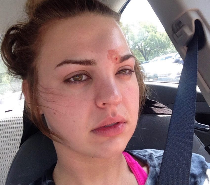 Young Woman Pops A  U0026 39 Pimple U0026 39  Above Eye  Then Staph Infection Almost Blinds Her