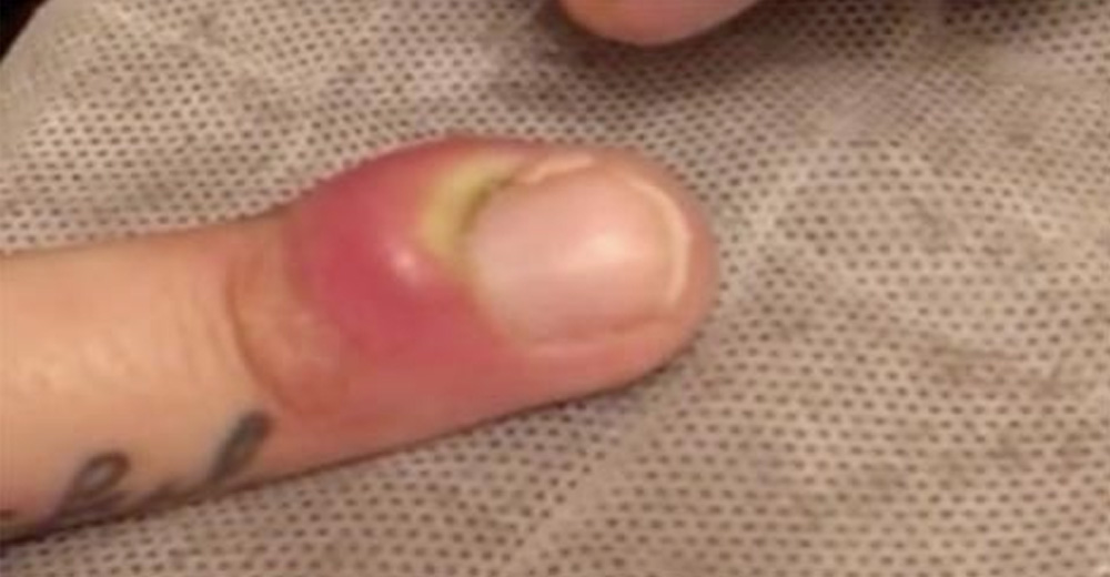Man Who's Finger Started Swelling Beyond Belief, Took ...