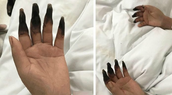 woman fingers black gangrene